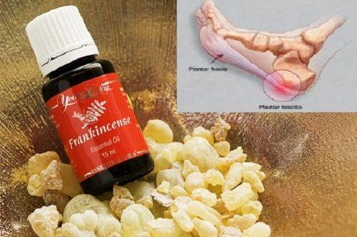 frankincense-feet