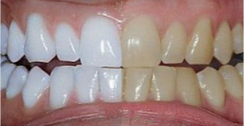White your Teeth With Only Two Ingredients