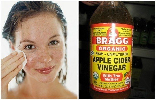 The Unbelievable Effect of Apple Cider Vinegar Use to Treat Eczema
