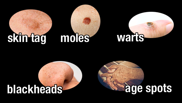 Get Rid of Moles and Warts in an all Natural Way