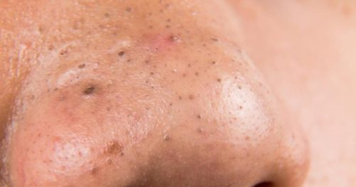 Remove your Blackheads NOW