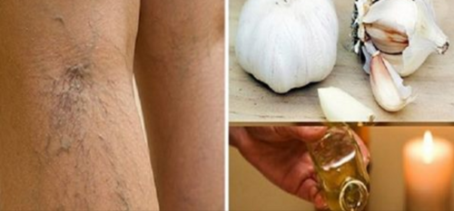 No More Varicose Veins – Defeat Them With Only One Ingredient