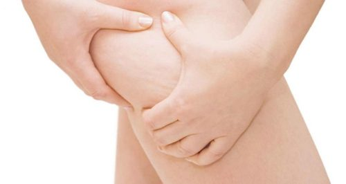 Make Cellulite Magically Disappear Only With Apple Cider Vinegar