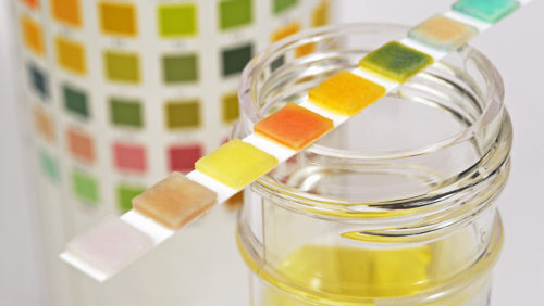 The Urine Color Tells About your Health