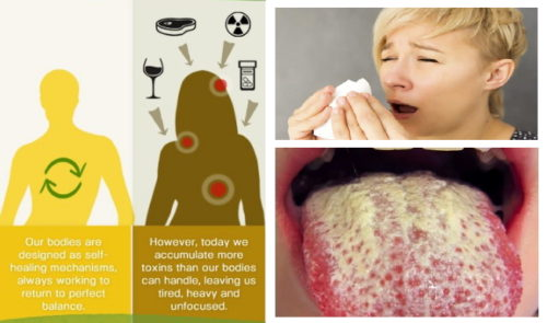 Symptoms That Show you it is Time to Detox