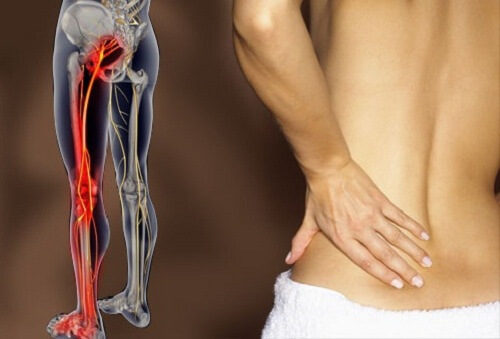 Homemade Remedies to Get Rid of Sciatic Nerve Pain