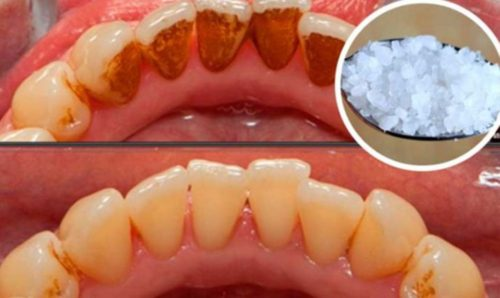 Remove Tartar and Bacterial Plaque From your Teeth With this Recipe