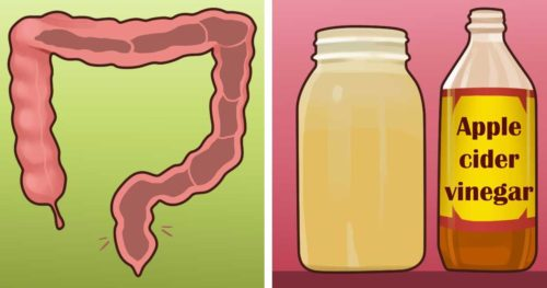 Remove Hemorrhoids With Apple Cider Vinegar