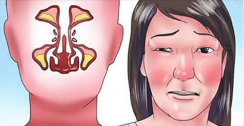 Clear your Stuffy Nose With this Trick