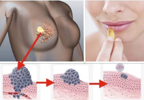 Amazing Vitamin that Will Prevent Cancer Cells from Developing