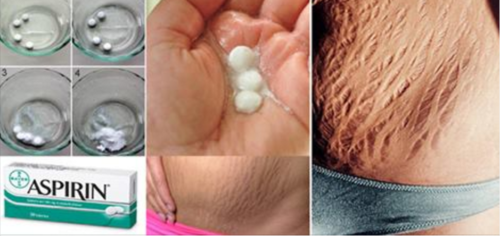 The Most Effective Method to Get Rid of Stretch Marks Very Fast by Using Aspirin