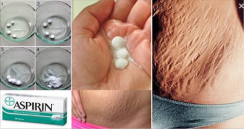 How to Eliminate Stretch Marks Fast and Naturally?