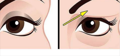 Treat Your Droopy Eyelids in a Natural Way