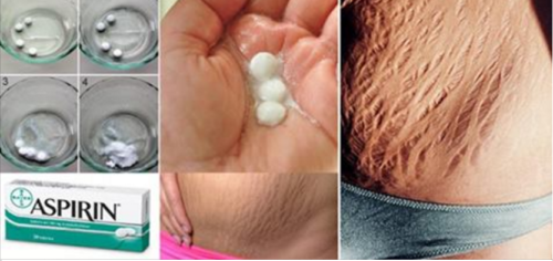 Use Aspirin to Get Rid of Stretchmarks Now