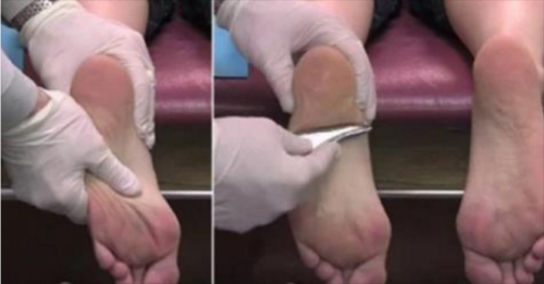 When she Went to a Chiropractor Something Amazing Happened – her Feet Did not Hurt Anymore