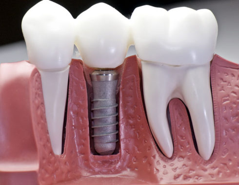 What Are Dental Implants Exactly