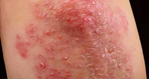 This Oil Will Treat Your Cold Acne Fungus Psoriasis and Much More