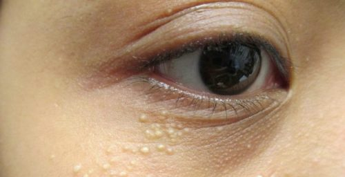 Remove Syringomas Permanently at Home!